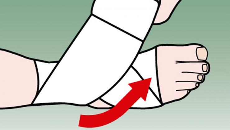 4. Bây giờ lại quấn băng theo đường chéo xuống dưới bàn chân.